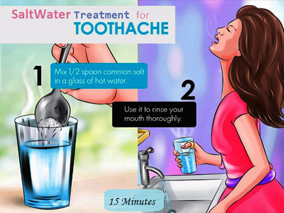 salt water treatment for toothache